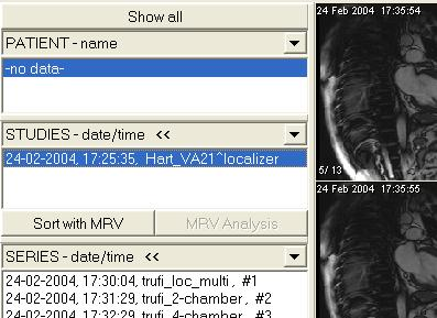 MRV interface Rubo DICOM viewer